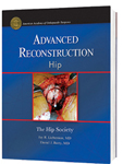 Advanced Reconstruction Hip