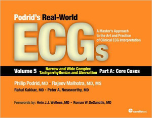 Podrid's Real-World ECGs: Volume 5A, Narrow and Wide Complex Tachyarrhythmias and Aberration