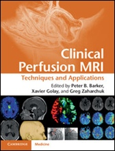 Clinical Perfusion MRI: Techniques & Applications
