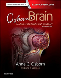 Osborns Brain,2/e-Imaging, Pathology & Anatomy