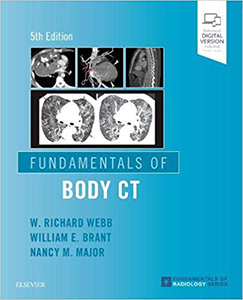 Fundamentals of Body CT 5e