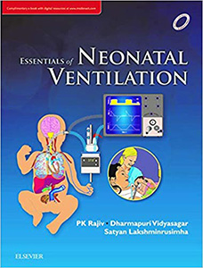 Essentials of Neonatal Ventilation