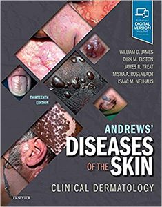 Andrews' Diseases of the Skin: Clinical Dermatology 13e