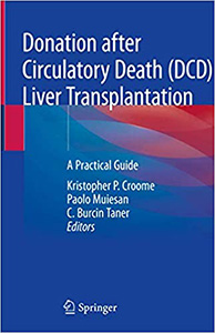 Donation after Circulatory Death (DCD) Liver Transplantation: A Practical Guide