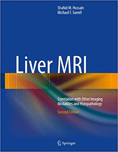 Liver MRI: Correlation with Other Imaging Modalities and Histopathology