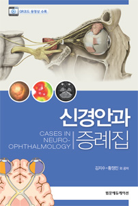 신경안과증례집 Cases in Neuro-ophthalmology