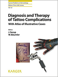 Diagnosis and Therapy of Tattoo Complications: With Atlas of Illustrative Cases (Current Problems in Dermatology, Vol. 52)