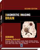 Diagnostic Imaging:Brain,2/e