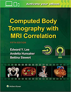 Computed Body Tomography with MRI Correlation 5e
