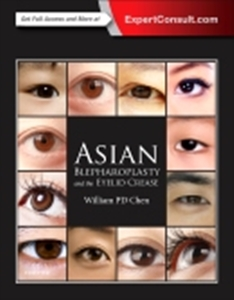 Asian Blepharoplasty and the Eyelid Crease,3/e