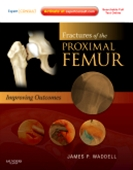 Fractures of the Proximal Femur: Improving Outcomes