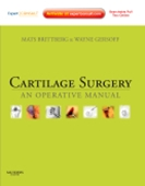 Cartilage Surgery: An Operative Manual