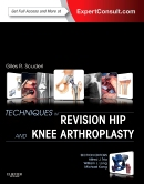 Techniques in Revision Hip and Knee Arthroplasty