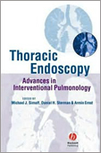 Thoracic Endoscopy: Advances in Interventional Pulmonology