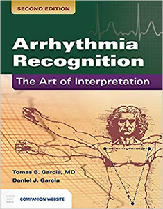 Arrhythmia Recognition: The Art of Interpretation 2e